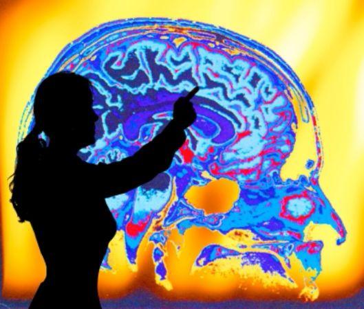 Mozak sistem zila