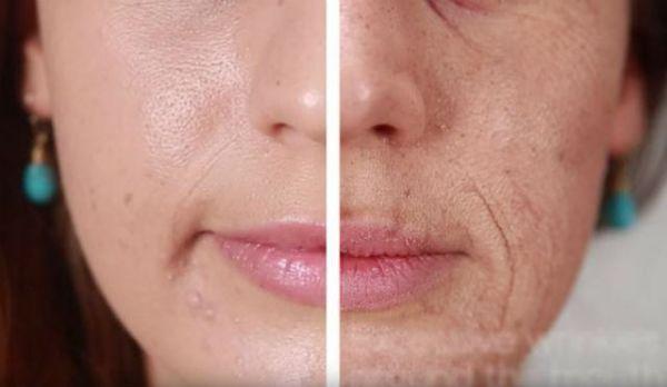 Pusenje lice
