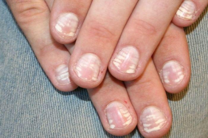 Bijele mrlje nokti