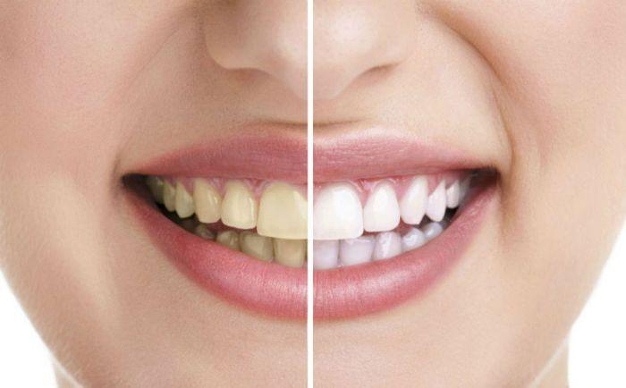 Zubi bijeli